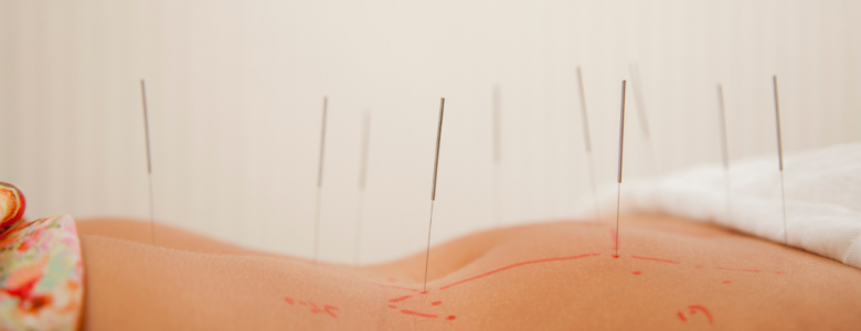 latest update from our clients  acupuncture in Gainesville Fl